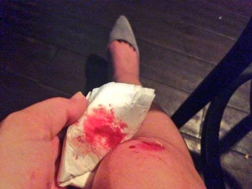 bloody knee.